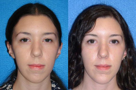 Chin Implant Patient in Granite Bay