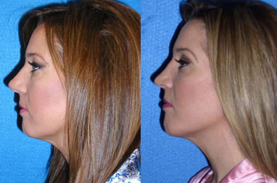 Chin Implant Patient in Sacramento