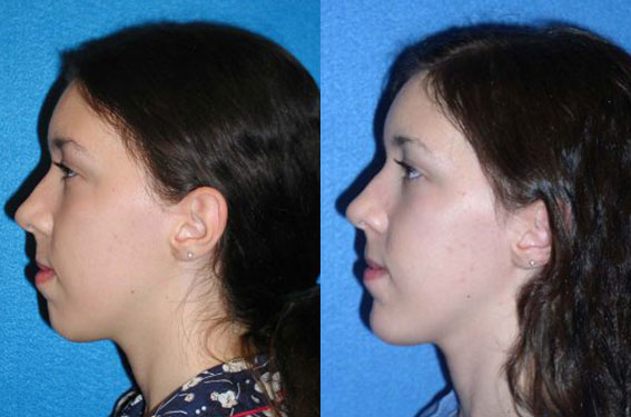 Chin Implant Patient Before After in Sacramento