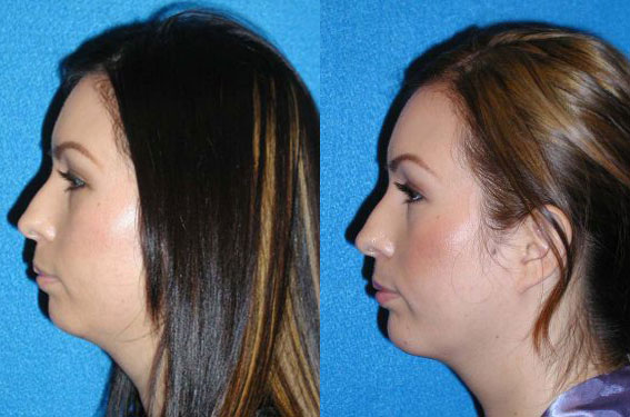 Chin Augmentation Before After in Granite Bay