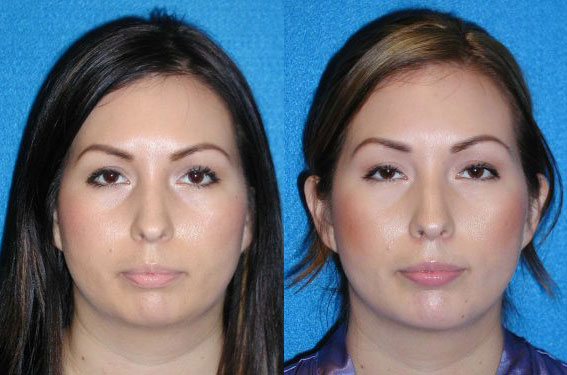 Chin Augmentation Patient in Granite Bay
